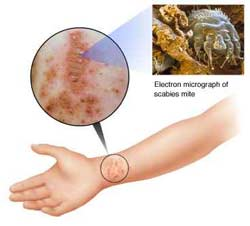 Scabies Home Remedy